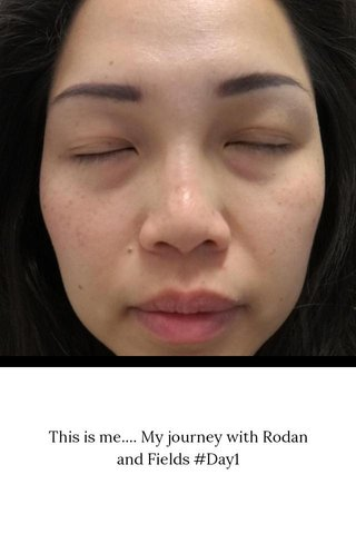 This is me.... My journey with Rodan and Fields #Day1