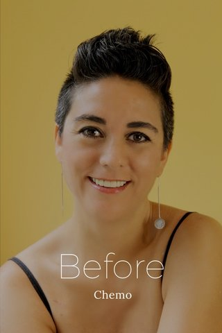 Before Chemo