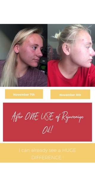 After ONE USE of Rejuveniqe Oil! I can already see a HUGE DIFFERENCE ! November 7th November 8th