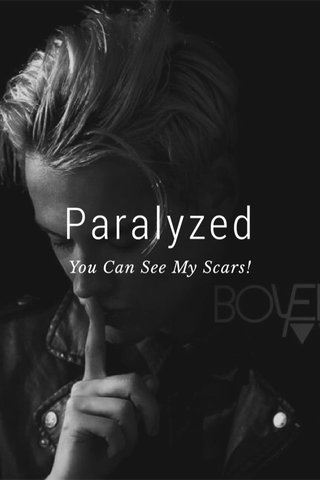 Paralyzed You Can See My Scars!